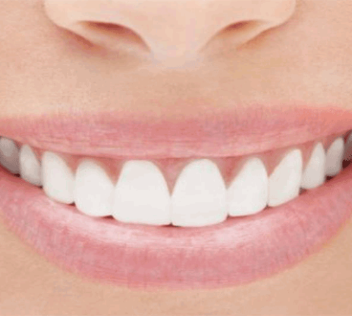 sbiancamento-pulizia-denti