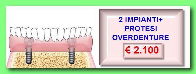 2-impianti-protesi-overdenture