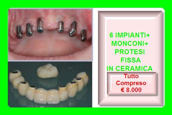 6-impianti-monconi-protesi-fissa-ceramica