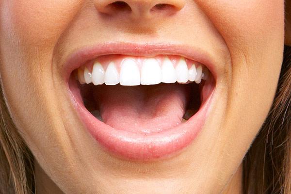 sorriso-smagliante-2